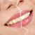 tandarts antwerpen